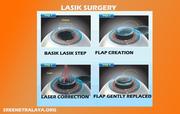 Refractive Services   Economic Lasik Surgery   Lasik eye care