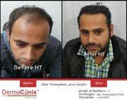 Hair Transplant Surgeon in Delhi