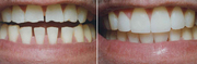Affordable Smile Makeover Dental Clinic In Gurgaon