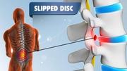 You want to Slip disc treatment in Delhi