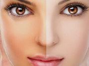 Skin Lightening Treatment Cost in Delhi