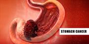 Stomach/Gastric Cancer Treatment in Delhi,  Gurugram,  Gurgaon